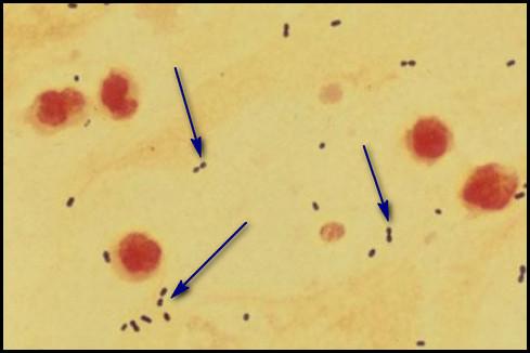 Streptococcus pneumoniae diplococci | Medical Laboratories