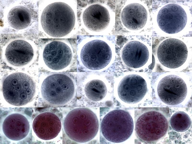 entamoeba coli cysts - nuclei-chromatoid bars
