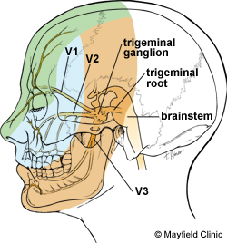 The trigeminal nerve supplies feeling and movement to the face. It has three divisions that branch from the trigeminal ganglion: ophthalmic division (V1) provides sensation to the forehead and eye, maxillary division (V2) provides sensation to the cheek, and mandibular division (V3) provides sensation to the jaw