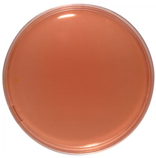 Desoxycholate Citrate Agar (DCA)