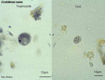 Endolimax nana trophozite and cyst