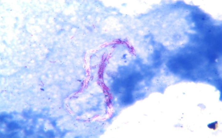 Mycobacterium tuberculosis in cord-like appearance