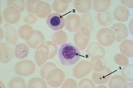 NRBCs and Howell Jolly body