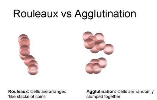 Rouleaux formation vs Agglutination Comparision
