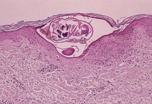 Scabies female adult and egg