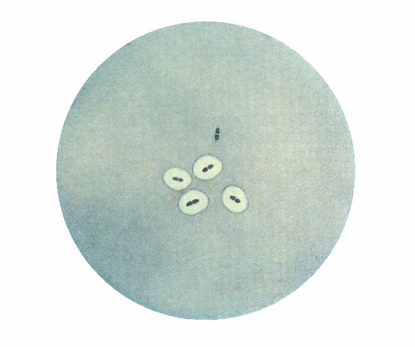 Photomicrograph of Streptococcus pneumoniae bacteria revealing capsular swelling using the Quellung test
