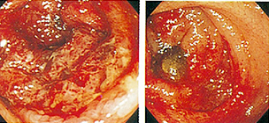 Colonoscopic view of colon - haemorragic colitis by E. coli 0157:H7