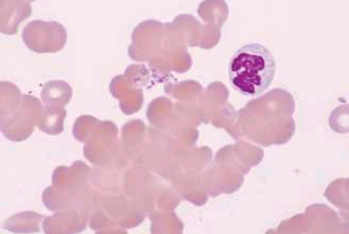 Agglutination of red cells