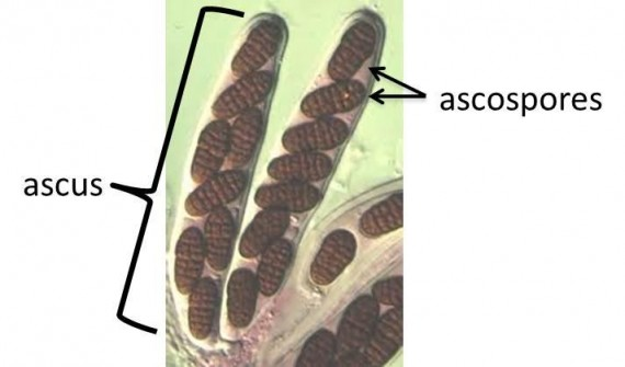 Ascus with Ascospores