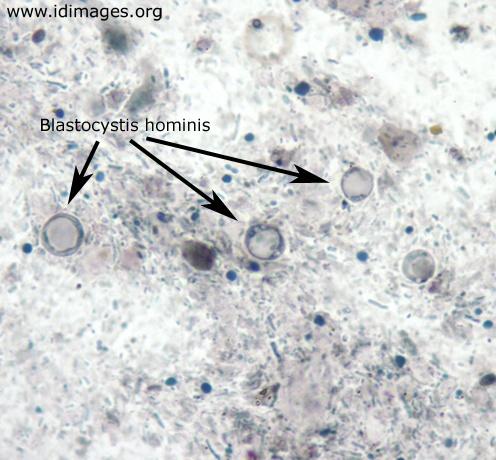 blastocystis hominis paraziták nedir)