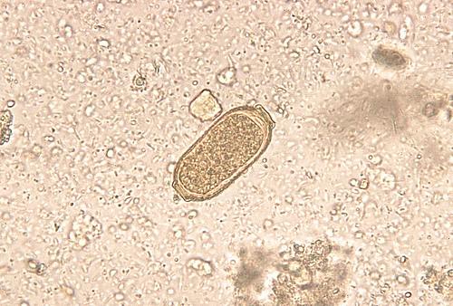 Capillaria Philippinensis ova