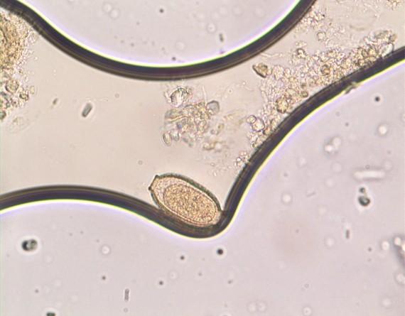 Capillaria philippinensis egg