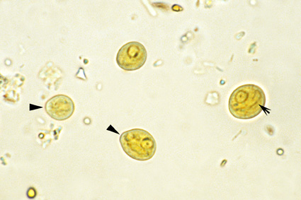 http://www.medical-labs.net/wp-content/uploads/2015/03/Chilomastix-mesnili-cysts-Iodine-stain.jpg Chilomastix Mesnili