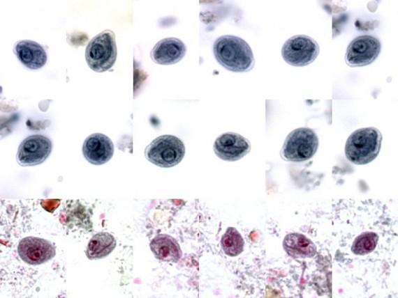 Chilomastix mesnili cysts shape