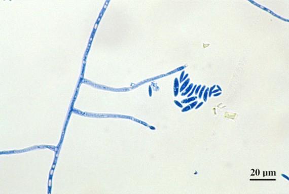 Fusarium spp sickle shape macroconidia