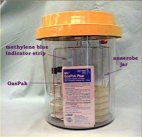GasPak system - notice the methylene blue indicator strip
