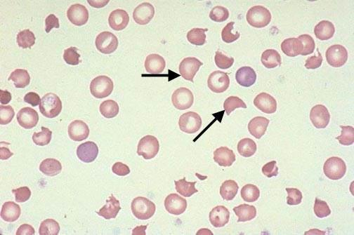 Helmet Cells (Keratocytes)