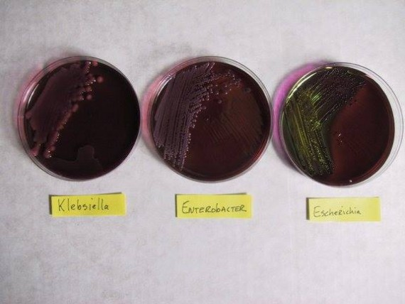 Klebsilla, Enterobacter and Ecoli on EMB Agar