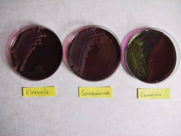Colorless colonies in Eosin Methylene Blue EMB Agar  In EMB agar most of the strains of Ecoli colonies have a characteristic green sheen