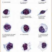 Large and Small lymphocytes