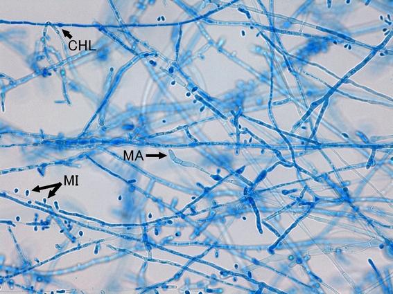Microconidia (MI), Macroconidia (MA) and Chlamydospore (CHL)