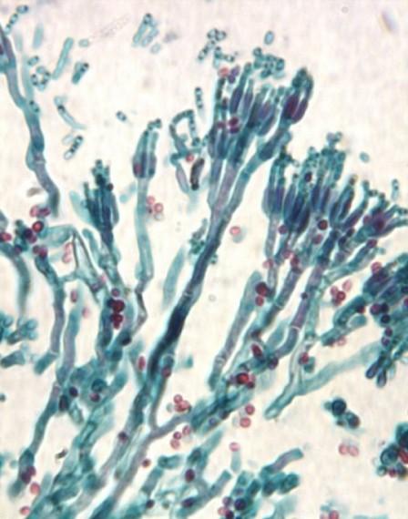 Molds - Filamentous fungi