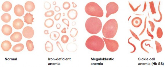 Normal compared to several types of abnormal RBCs