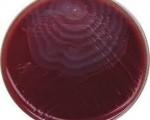 Proteus mirabilis on blood agar