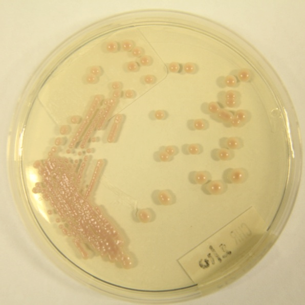 Sabouraud agar plate showing Cryptococcus neoformans colonies