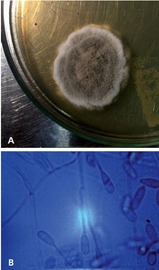 A)- colony of S. apiospermum Sabouraud agar with chloramphenicol. A colony of white edges and brown center (B)- the oval appearance of conidia, with truncated base, hyaline septate hyphae emerging (40x magnification)