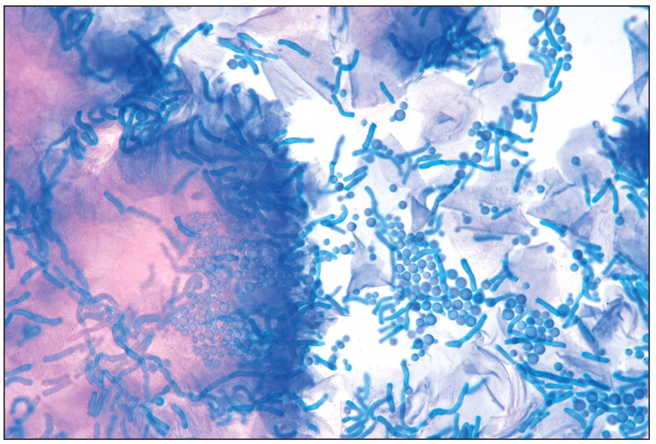 Short blue-staining hyphae and spherical spores of Malassezia furfur