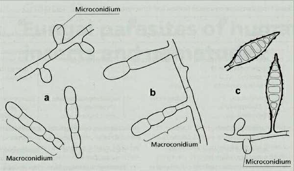 Spores of the three common genera of dermatophytic fungi (a) Macroconidia and microconidia of Trichophyton spp. (b) Macroconidia of Epidermophyton spp, which do not produce microconidia. (c) Spindle-shaped macroconidia, and microconidia of Microsporum spp