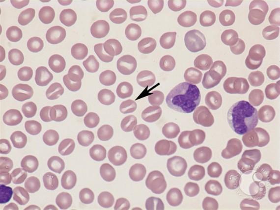 Stomatocytes