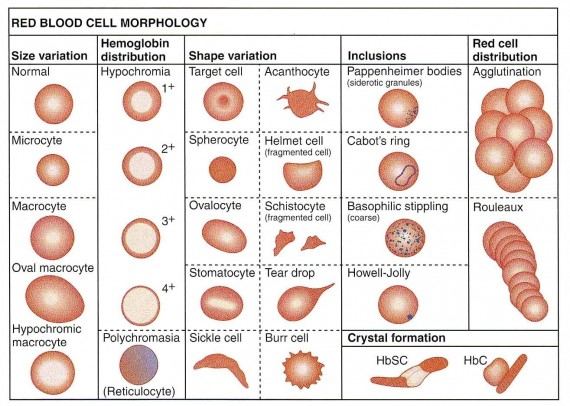 Summary of red blood cellsmorphology