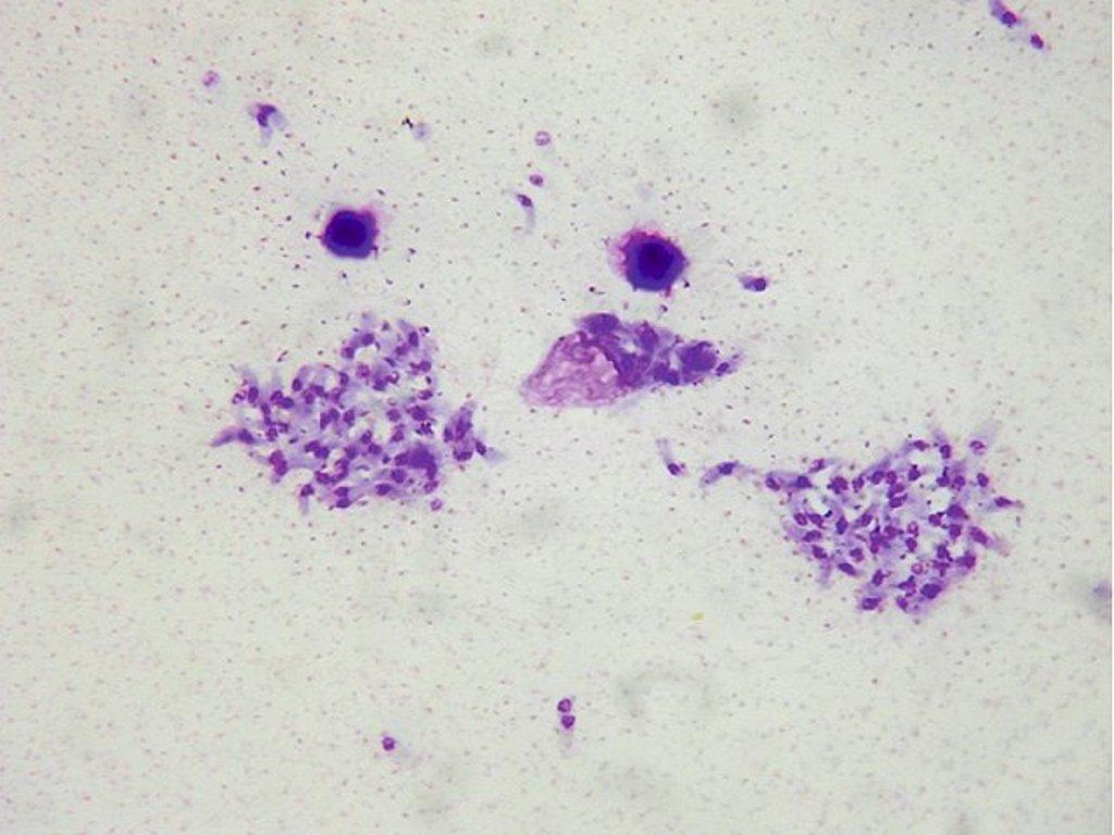 Toxoplasma gondii   Medical Laboratories