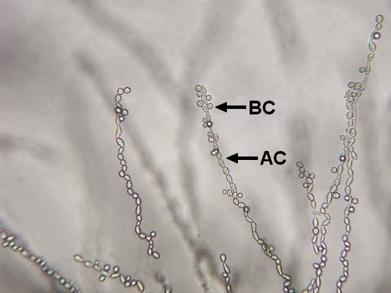Trichosporon mucoides -Chains of arthroconidia (AC) have developed from the hyphae.  Lateral blastoconidia (BC) are present, as the name implies, on the sides of the arthconidial chains or hyphae.