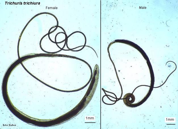 Trichuris trichiura jantan dan betina