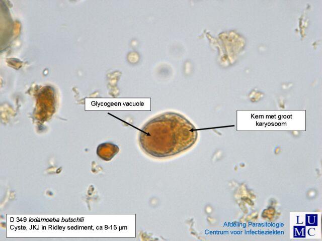 Iodamoeba B 252 Tschlii Medical Laboratories