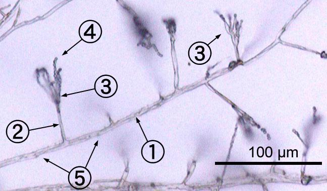 microscopic image of Penicillium sp 1- hypha 2- conidiophore 3- phialide 4- conida 5- septa