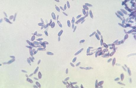tissue phase yeast of Sporothrix schenckii