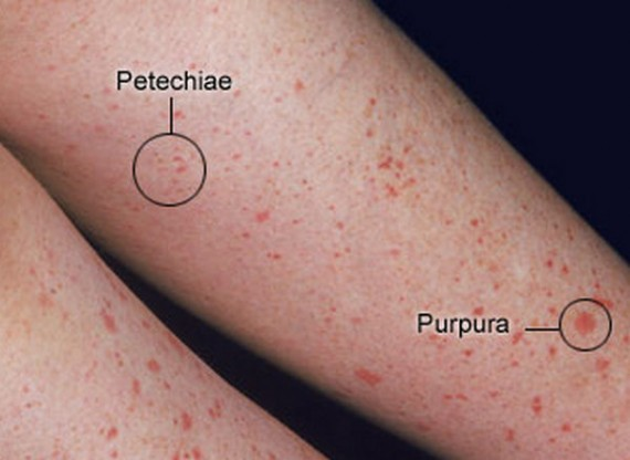 Petechiae vs Purpura