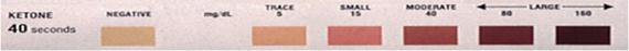 Ketone Urine Strip