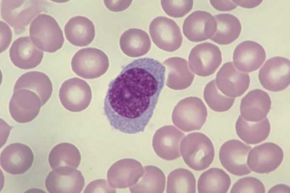 Monocyte with folded nucleus