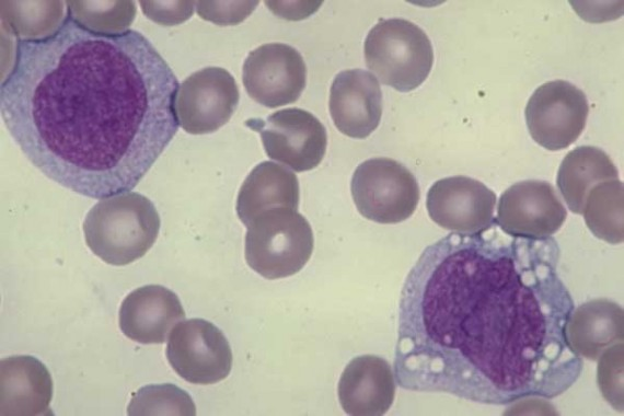 Two young monocytes