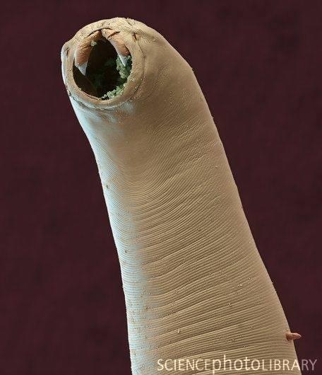 Hookworm in Electron Microscope
