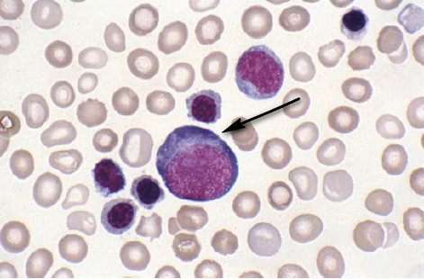 Proerythroblast and polychromatic erythroblasts in the peripheral blood of a newborn infant with haemolytic disease of the newborn.