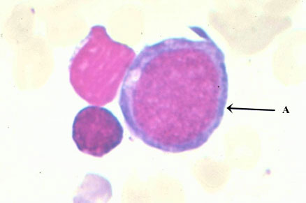The proerythroblast (A) is the earliest identifiable erythroid precursor in the bone marrow.