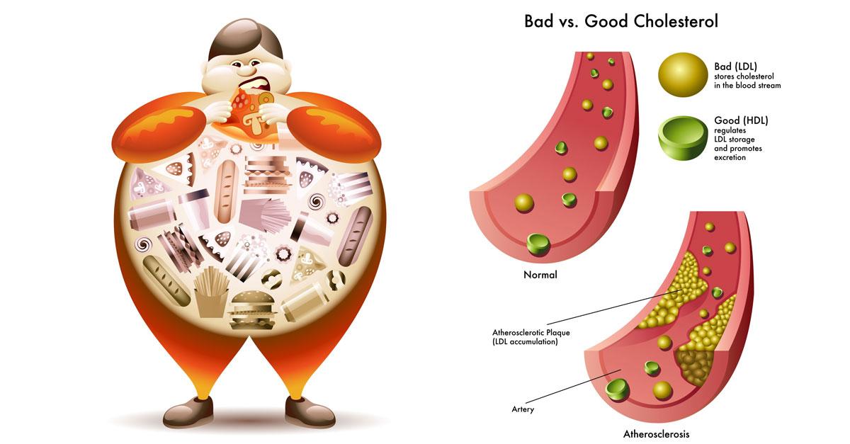 total cholesterol overview | medical laboratories, Skeleton