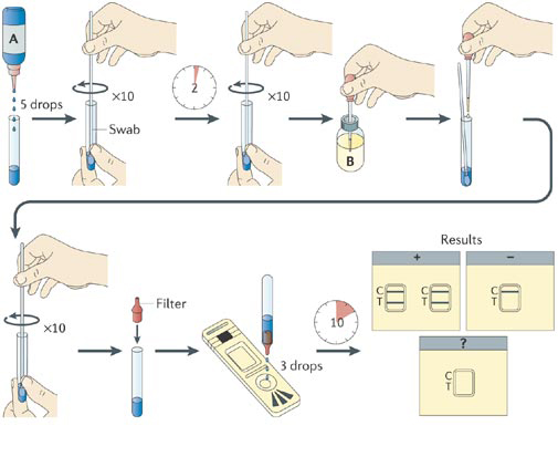 Rapid Chlamydia Antigen Detection Test