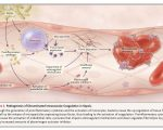 Pathogenesis of DIC (Disseminated intravascular coagulation)
